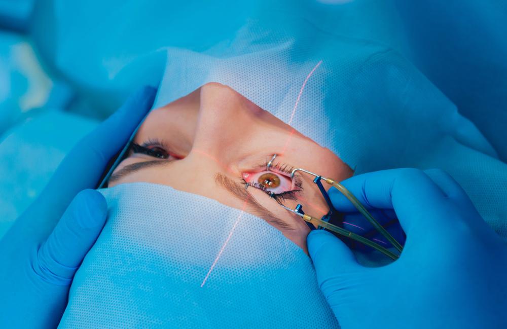 The Cataract Surgeons performing laser eye surgery